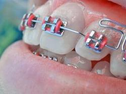 aparelho-dental-501564-m